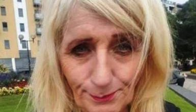 تصویر از جوان شدن دیدنی زن 57 ساله با جراحی زیبایی! عکس