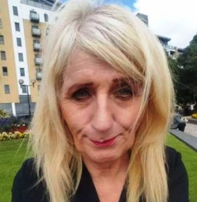 جوان شدن دیدنی زن 57 ساله با جراحی زیبایی! عکس