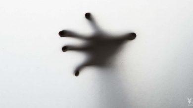 تصویر از سندروم دست بیقرار چیست؟ | سندروم دست بیگانه و دست بی قرار
