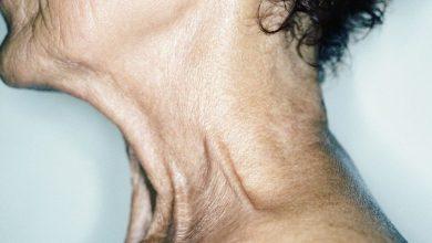 تصویر از چگونه از افتادگی پوست گردن جلوگیری کنیم؟ راههای تقویت پوست گردن