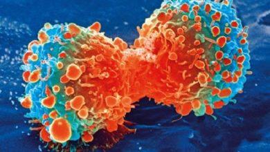 تصویر از انواع سرطان و علائم آن