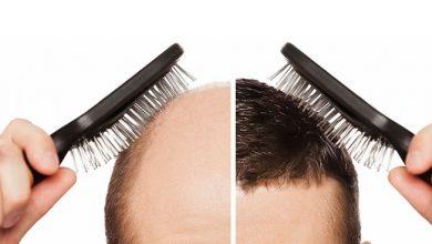 تصویر از انواع روشهای کاشت مو؛ کاشت مو چیست و چه عوارضی دارد؟