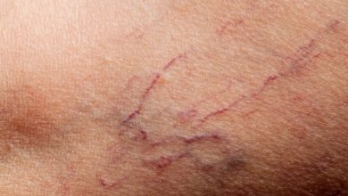 تصویر از علت پارگی مویرگ زیر پوست و 7 راه عالی برای درمان