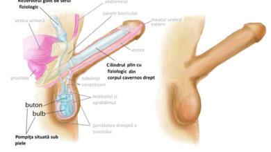 تصویر از شکستگی آلت تناسی یکی از فجیع ترین بیماری ها