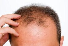 تصویر از جلوگیری از ریزش مو با یک رژیم غذایی جدید و نوین