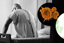 تصویر از انواع سرطان و علائم هر یک، از سرطان پستان تا سرطان پروستات