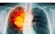 تصویر از مهم ترین عوامل در ایجاد سرطان ریه